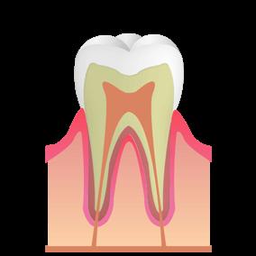 虫歯になる前兆