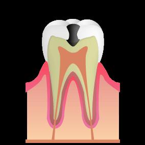 神経の近くまで進行した虫歯