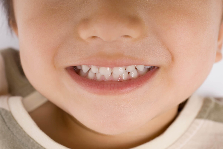 お子さまの歯列矯正